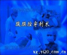 腹膜腔穿刺术高清视频演示