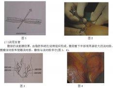 妇科腹腔镜手术相关腹部解剖