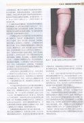 国际超声医学名著丛书-血管超声经典教程(p289-349).pdf.pdf