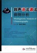 超声误诊漏诊 病例分析黄品同2009.pdf