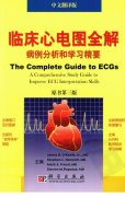 【心电图】临床心电图全解++案例分析与学习精要++原书....pdf