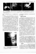 消化系统影像学(高清版)2005