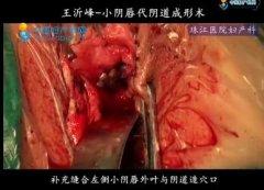 王沂峰教授:小阴唇代阴道成形术操作视频