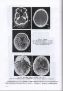 CT头部诊断学(下)