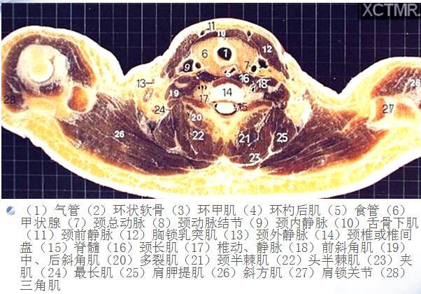 pdf电子阅读器_人体断层解剖图谱(胸腔)下载,医学电子书