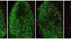 J. Exp. Med:突破!科学家发现负责清除损伤神经元的大脑细胞